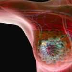 New findings Offer Improved Therapy of Early Stage, BRCA mutations – associated Breast Cancer